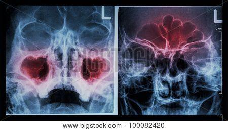 sinusitis at maxillary sinus ( left image ) , frontal sinus ( right image )