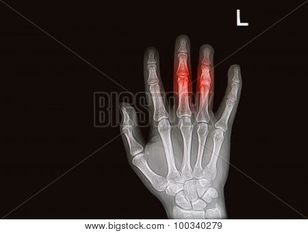 Injury Or Painfull Of Handand Finger  X-rays Image