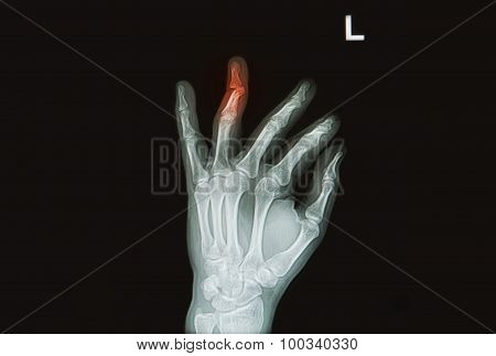 Injury Or Painfull Of  Hand And Finger X-rays Image