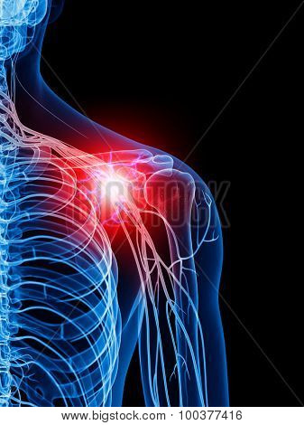 medically accurate illustration of a painful shoulder