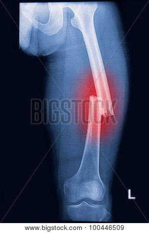 Broken Human Thigh X-rays Image