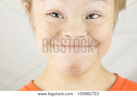The Face Of Downs Syndrome