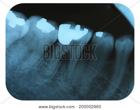 X-Ray Negative of the Teeth Filled with Amalgam