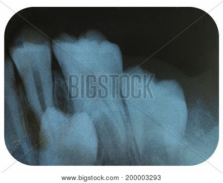 X-Ray Negative of a Impacted Tooth Required Surgery