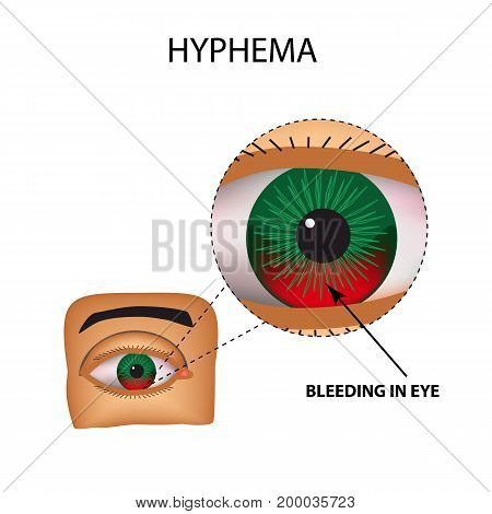 Hyphema. Anterior eye hemorrhage. The structure of the eye. Infographics. Vector illustration on isolated background.