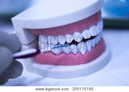 Interdental Teeth Cleaning
