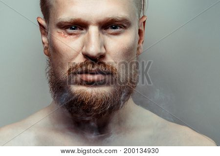 Portrait Of Strained Focused Young Man With A Scar On His Face In Cigarette Smoke. Bad Habit Concept