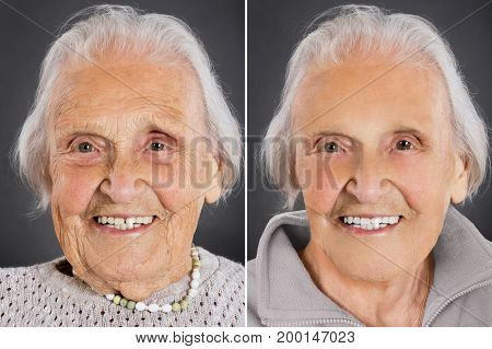 Senior woman anti aging skin treatment before and after