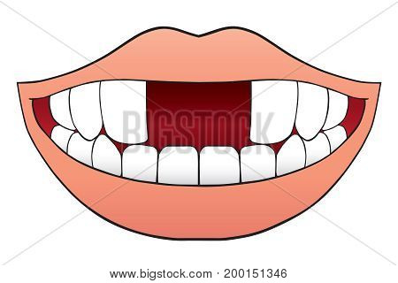 Cartoon mouth with two front teeth missing