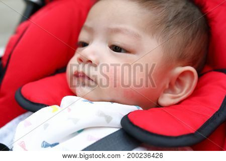 Cute Baby Boy Playful Bubbles Saliva Drool On Child Mouth With Allergic Rash On Kid Chubby Cheeks