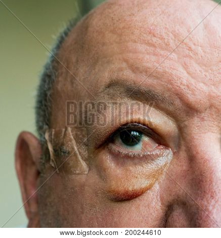 Close-up of elderly man face with large edema of the eyelids after surgery