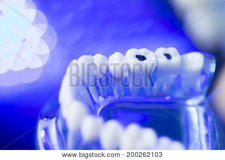 Dental Teeth Decay Model
