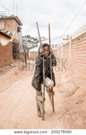 Portrait of poor girl playing on the road with two foot made of wood in Madagascar