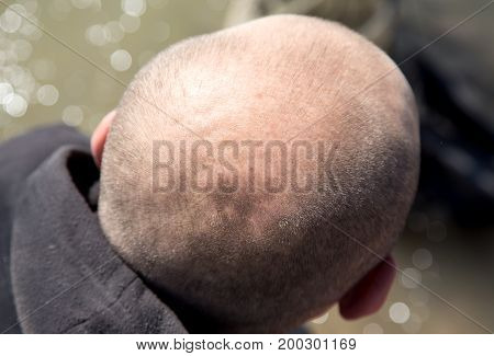 A round bald head in a man in nature