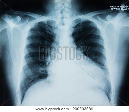 X-ray Film Image Of Chest For Medical Diagnose.