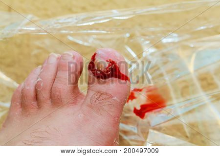 Bruise on toe nail on right foot man Torn nail blood on the leg