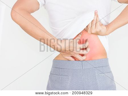Young man scratching the itch on him back with allergy rash Healthcare concept.