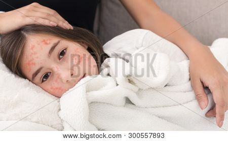 Girl With Measles Virus Lying On Mother Knees, Mom Stroking Her Daughter