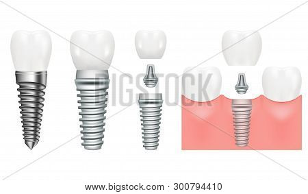 Realistic Dental Implant Structure With All Parts Crown, Abutment, Screw. Dentistry. Implantation Of