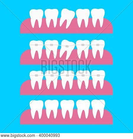 Correction Of Teeth With Orthodontic Braces. Tooth Orthodontic Treatment Vector Illustration. Before