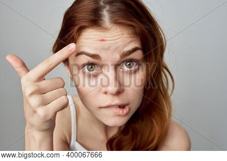 Woman With Forgiven Skin Problems Emotions Discontent