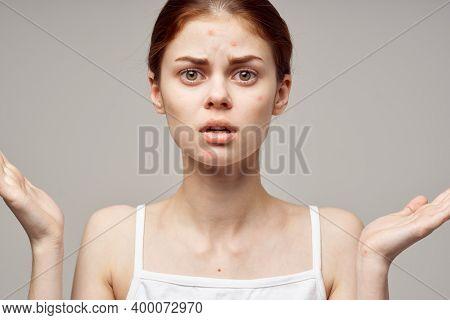Woman Face Skin Problem Acne Acne Portrait Cropped View Close-up