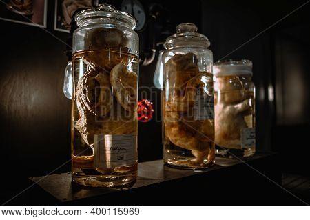 Deceased Fetuses In Glass Flasks. Virus Is Spreading