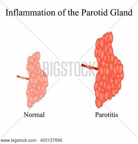 Inflammation Of The Parotid Gland.the Structure Of The Parotid Salivary Gland. Vector Illustration O
