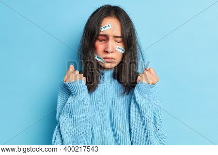 Abused Assaulted Woman Clenches Fists Stands With Big Hematoma Bruise On Face Expresses Fear And Des