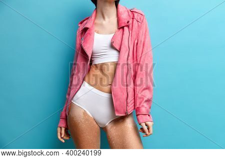 Cropped Shot Of Different Woman With Patchy Body Has Vitiligo Skin Wears White Underwear Pink Jacket