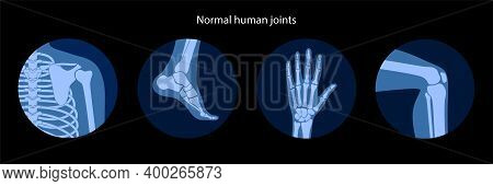 Set With Human Shoulder, Knee, Ankle And Wrist Icons. Normal Joints And Bones Anatomy. Skeleton Medi