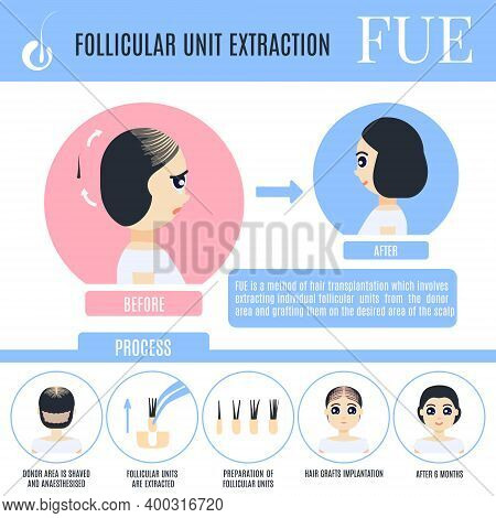 Fue Female Alopecia Treatment Medical Poster In Cartoon Style