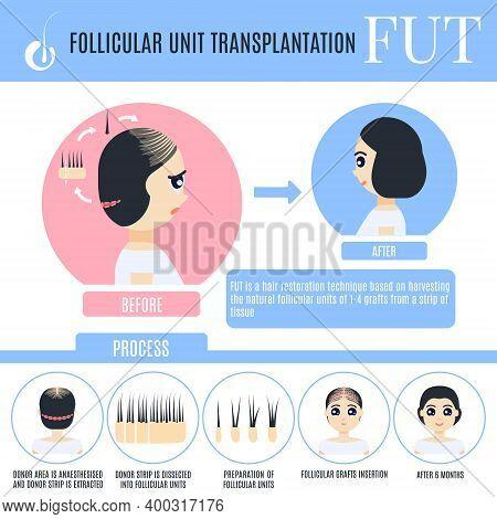 Fut Female Alopecia Treatment Medical Poster In Cartoon Style