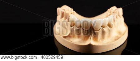 Close-up View Of Dental Layout Of Upper Veneers Of Teeth Prothesis