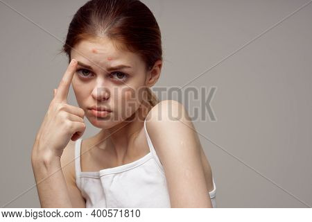 Beautiful Woman Gesturing With Her Hands Near Face Acne Skin Problems Acne