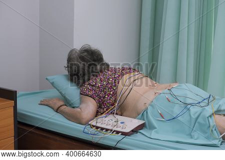 Asian Elderly Woman Is Receiving Electric Acupuncture Treatment For Her Back And Hip Pain In Hospita
