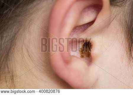 Earwax In The Dirty Ear Of A Child. Hole Ear Of Human, Wax On Hair And Skin Of Ear.