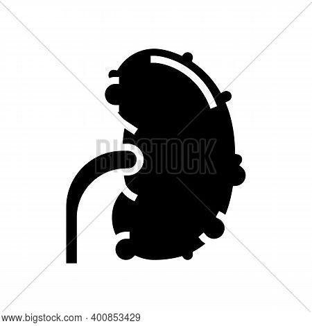 Chronic Pyelonephritis Glyph Icon Vector. Chronic Pyelonephritis Sign. Isolated Contour Symbol Black