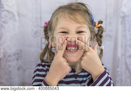 Adult Permanent Teeth Coming In Front Of The Child's Baby Teeth: Shark Teeth. Little Girl's Open Mou