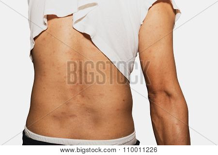 Back view of man with dermatitis problem of rash Allergy rash and Health problem. poster