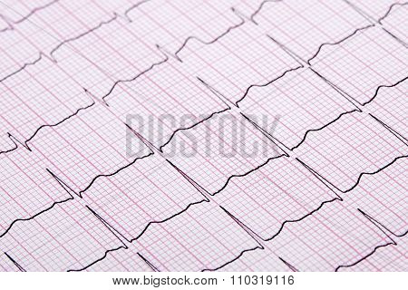 Close Up Of A Electrocardiograph Also Known As A Ekg