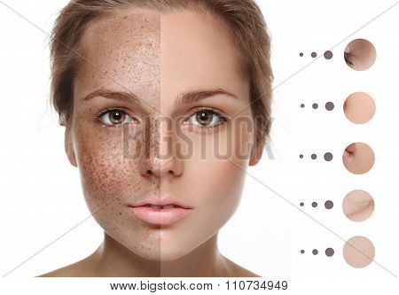 Woman Freckle Half-face Happy Young Beautiful Portrait With Healthy Skin Half Problem And Clear Skin