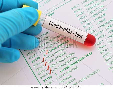 Blood sample with requisition form for lipid profile test