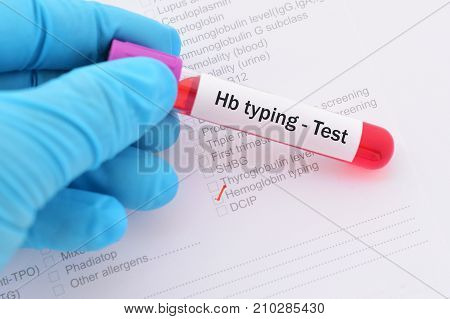 Blood sample with requisition form for Hb typing test