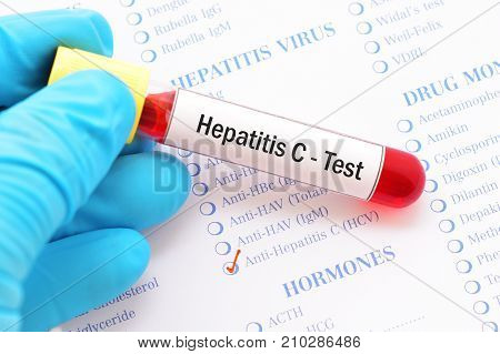Blood sample with requisition form for hepatitis C virus test