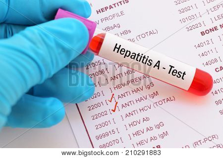 Blood sample with requisition form for hepatitis A virus test