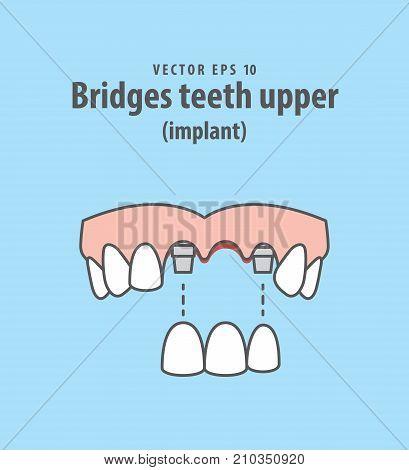 Bridges Teeth Upper (implant) Illustration Vector On Blue Background. Dental Concept.