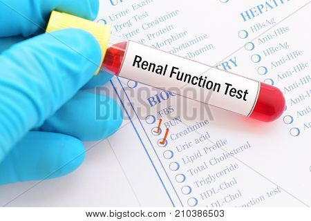 Blood sample with requisition form for renal function test