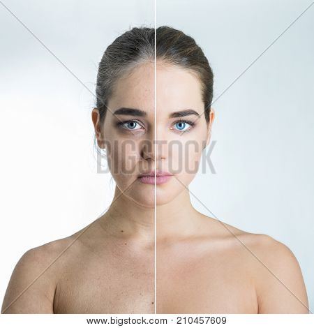 Anti-aging concept, beautiful woman with problem and clean skin, aging and youth, beauty treatment, plastic surgery, beauty shots, aging process concept. Female face before and after beauty treatment.