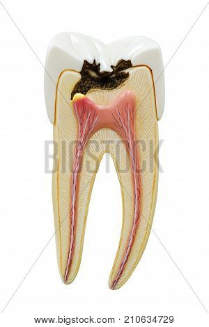 Decayed tooth model isolate on white background